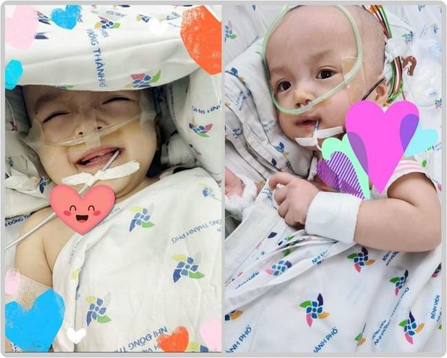 Gần 2 tuần sau ca đại phẫu: Hai chị em Song Nhi đều cai được máy thở, thoải mái mỉm cười - Ảnh 1.