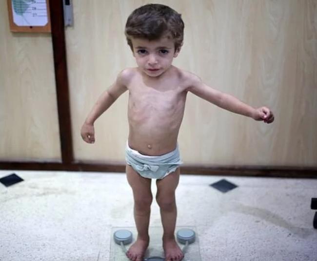 Trẻ em suy nhược cơ thể, vì sao? - Ảnh 1.
