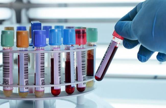 Người đàn ông 60 tuổi mắc viêm gan B hơn 30 năm vẫn khoẻ mạnh nhờ 3 lý do này - Ảnh 2.