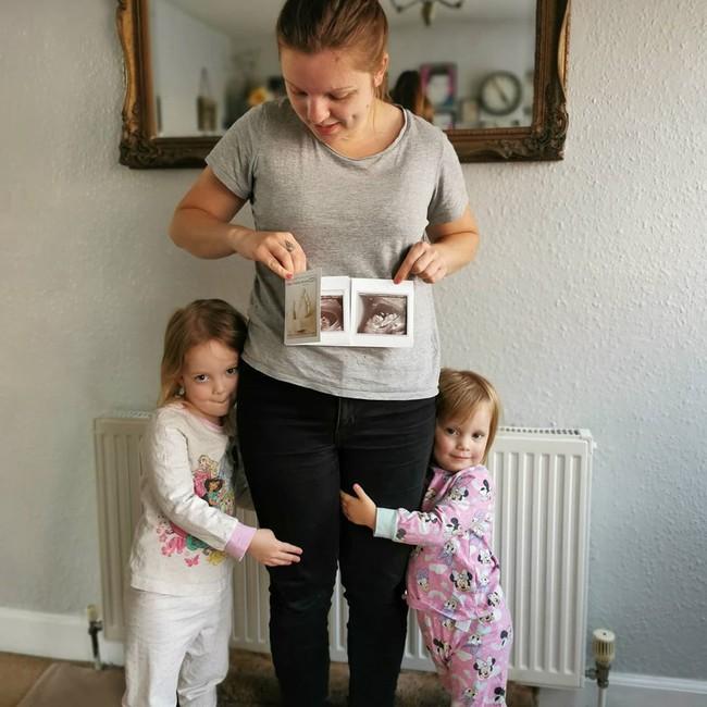 Kỳ lạ mẹ bầu mang song thai, nhưng là trong 2 tử cung khác nhau - Ảnh 2.