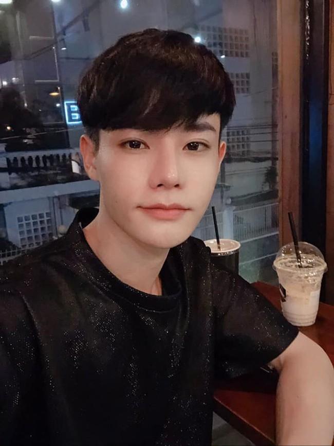 Giấu gia đình đi phẫu thuật thẩm mỹ 4 lần, chàng trai được khen giống idol Hàn Quốc nhưng chi phí phẫu thuật mới là điều đáng trầm trồ nhất - Ảnh 6.