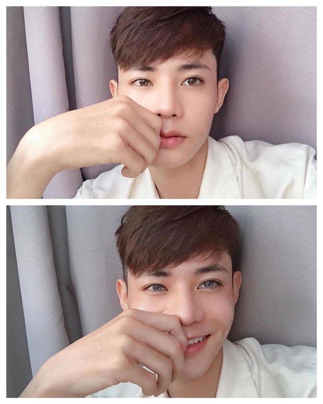 Giấu gia đình đi phẫu thuật thẩm mỹ 4 lần, chàng trai được khen giống idol Hàn Quốc nhưng chi phí phẫu thuật mới là điều đáng trầm trồ nhất - Ảnh 5.