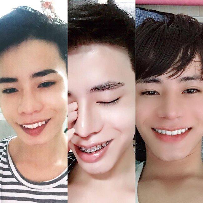 Giấu gia đình đi phẫu thuật thẩm mỹ 4 lần, chàng trai được khen giống idol Hàn Quốc nhưng chi phí phẫu thuật mới là điều đáng trầm trồ nhất - Ảnh 3.