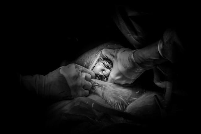 """Ngẩn ngơ trước những khoảnh khắc sinh nở đẹp đến ngỡ ngàng được nhiếp ảnh gia """"bắt lại"""" khi tác nghiệp tại bệnh viện - Ảnh 12."""