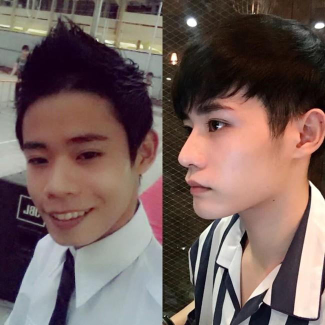 Giấu gia đình đi phẫu thuật thẩm mỹ 4 lần, chàng trai được khen giống idol Hàn Quốc nhưng chi phí phẫu thuật mới là điều đáng trầm trồ nhất - Ảnh 2.