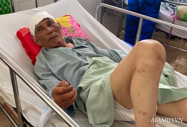 TP.HCM: Bệnh viện khẩn tìm người thân cho cụ ông bị té đập đầu mê sảng, không ai ở bên cạnh - Ảnh 2.