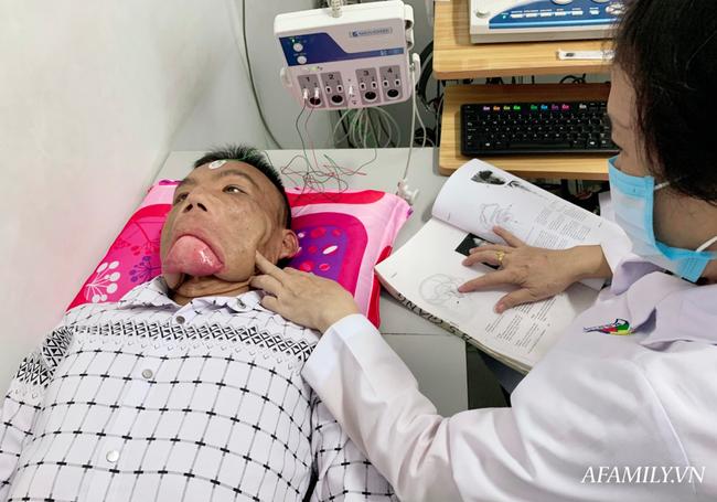 Bác sĩ Sài Gòn tìm cách cứu người đàn ông mang bộ mặt quái dị, 15 năm ngủ ngồi và mắt luôn đỏ như máu - Ảnh 4.