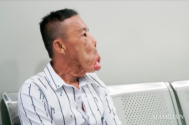 Bác sĩ Sài Gòn tìm cách cứu người đàn ông mang bộ mặt quái dị, 15 năm ngủ ngồi và mắt luôn đỏ như máu - Ảnh 1.