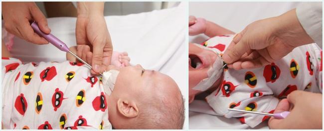 Em bé quê ở Yên Bái là một trong những trường hợp hiện đang được điều trị tại bệnh viện Nhi Trung ương