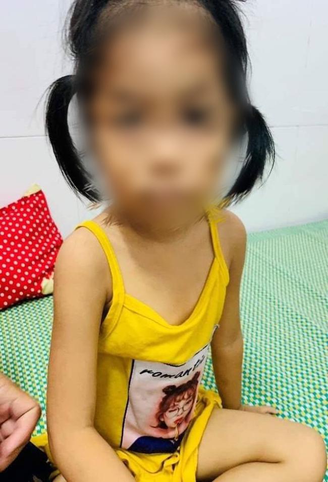 Dùng lá lộc mại chữa táo bón cho con, bé 4 tuổi bị ngộ độc nặng, đi tiểu ra máu - Ảnh 1.