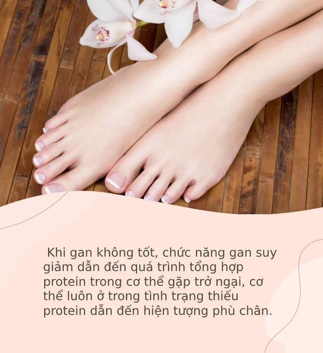 """Bàn chân giống như """"đồng hồ sức khoẻ"""", 3 dấu hiệu này trên bàn chân cho biết rất có thể gan của bạn đang gặp vấn đề - Ảnh 3."""
