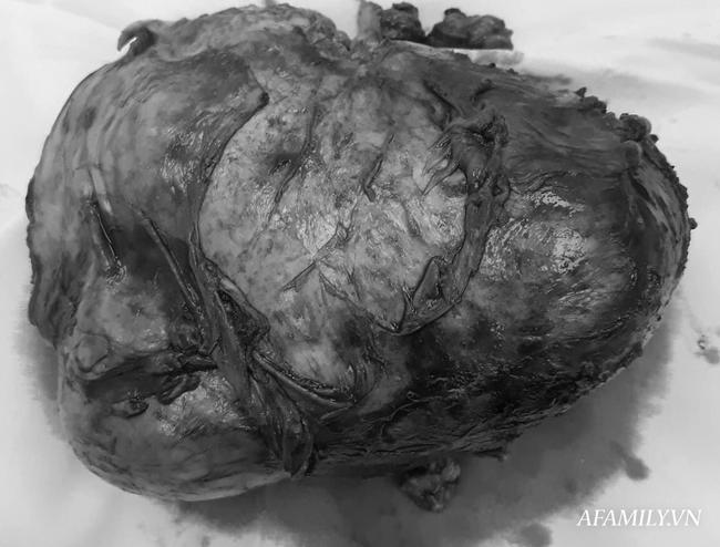 Bị tăng huyết áp và nữ hoá tuyến vú, người đàn ông suýt chết vì khối u lớn 'khủng khiếp' ở thận - Ảnh 3.