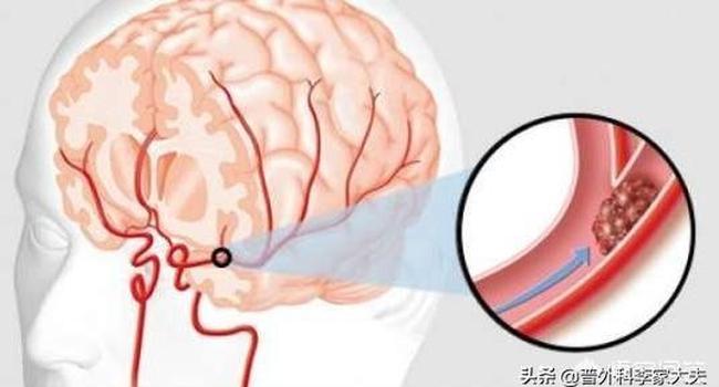 Khi ngủ mà gặp 4 biểu hiện này trên cơ thể thì cần đi khám, nếu chủ quan để nặng có thể dẫn đến nhồi máu não hay tai biến mạch máu não - Ảnh 4.