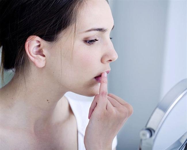 Viêm loét miệng chỉ cần chịu khó vài ngày sẽ khỏi? Nếu gặp phải 5 trường hợp này cần đi khám ngay kẻo mắc ung thư mà không biết - Ảnh 2.