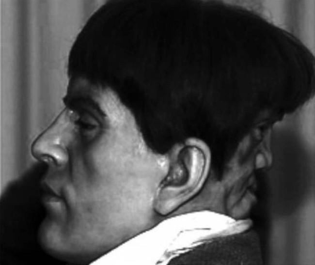 Bí ẩn chàng trai quý tộc có gương mặt phía sau gáy, mỗi khi khóc thì nó lại cười và bị quấy rầy đến nỗi hóa điên và tự tử ở tuổi 22 - Ảnh 2.
