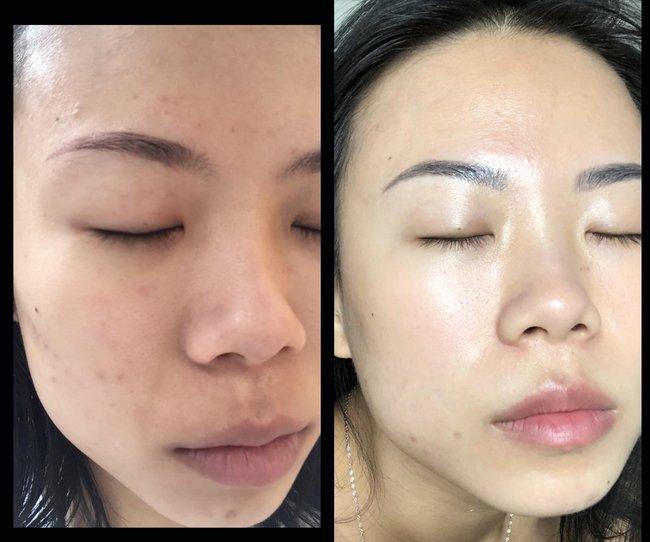 Hành trình lấy lại làn da căng bóng suốt 2 năm: Sáng không dùng sữa rửa mặt và bổ sung 2 loại nước cân bằng hàng ngày  - Ảnh 1.