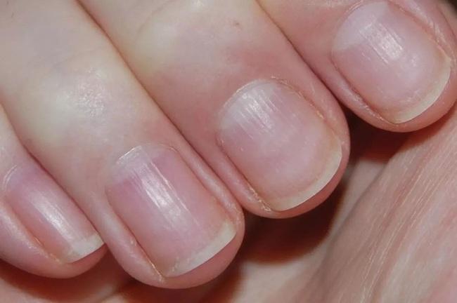 Người nhiều bệnh tật, sức khỏe kém thường có 5 dấu hiệu này trên bàn tay: Càng sớm khắc phục, tuổi thọ của bạn càng kéo dài! - Ảnh 3.