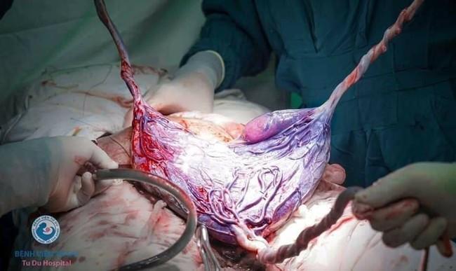 Ca sinh ba tự nhiên chào đời tại Bệnh viện Từ Dũ, 2 bé vẫn còn nằm nguyên trong túi ối - Ảnh 5.