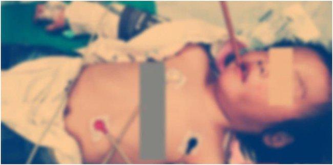 Vừa đi vừa ngậm bút chì, bé 14 tháng gặp phải tai nạn kinh hoàng - Ảnh 1.
