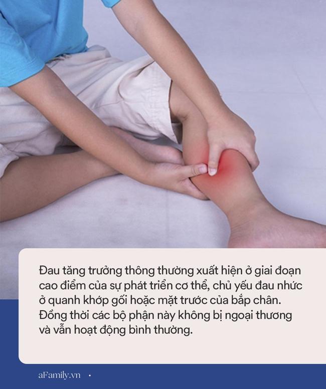 Bỗng dưng con kêu bị đau nhức chân vào ban đêm: Đâu là đau tăng tưởng, đâu là đau do bệnh tật? - Ảnh 1.