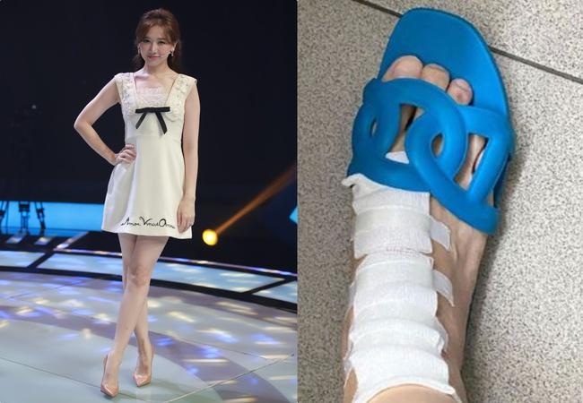 Hari Won mặc váy ngắn để lộ chân bị thương với chằng chịt vết sẹo  - Ảnh 2.