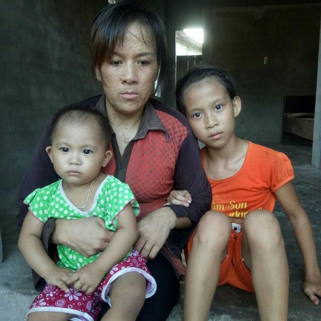 Mẹ mắc bệnh lạ, cơ thể nổi hàng nghìn khối u, bố bỏ đi biệt tích, hai đứa trẻ mịt mù tương lai - Ảnh 1.