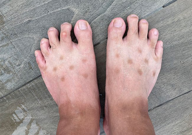 """Chia sẻ ảnh bàn chân lốm đốm """"kỳ dị"""" như mắc bệnh lạ, chàng trai tiết lộ lý do khiến bao người hốt hoảng soi lại chân mình - Ảnh 1."""