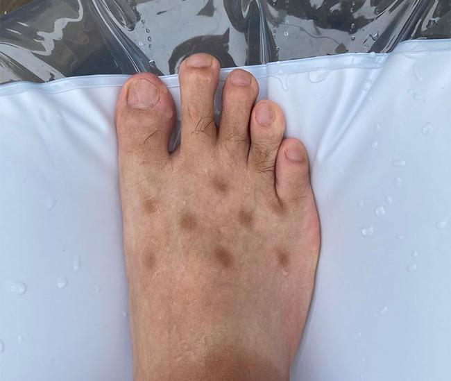 """Chia sẻ ảnh bàn chân lốm đốm """"kỳ dị"""" như mắc bệnh lạ, chàng trai tiết lộ lý do khiến bao người hốt hoảng soi lại chân mình - Ảnh 2."""