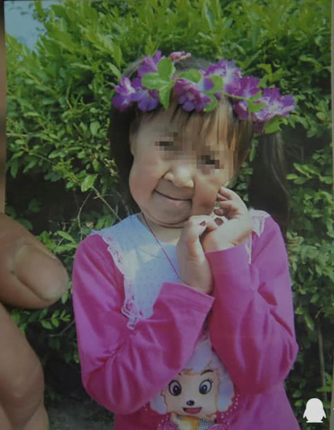Mắc căn bệnh lạ khiến cô bé 6 tuổi có ngoại hình như một bà lão 60 tuổi, cô đã phải cắt bỏ 7cm da mặt mới dám quay trở lại trường học - Ảnh 1.