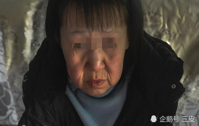 Mắc căn bệnh lạ khiến cô bé 6 tuổi có ngoại hình như một bà lão 60 tuổi, cô đã phải cắt bỏ 7cm da mặt mới dám quay trở lại trường học - Ảnh 2.