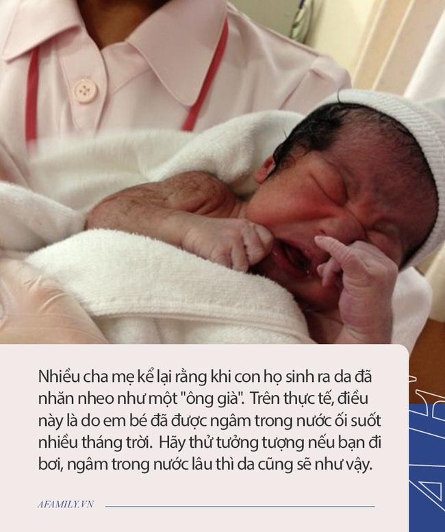 Từng sốc không nên lời khi sinh ra em bé đen xì như bao công, nhưng ngoại hình sau 2 tháng khiến ai cũng ngỡ ngàng - Ảnh 4.