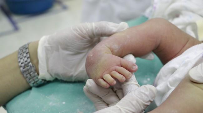 Phục hồi chức năng bàn chân khoèo bẩm sinh cho bé sơ sinh 10 ngày tuổi - Ảnh 2.