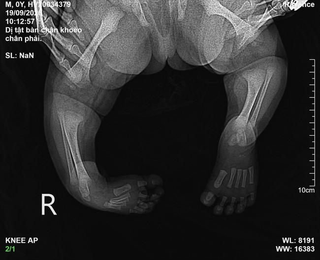 Phục hồi chức năng bàn chân khoèo bẩm sinh cho bé sơ sinh 10 ngày tuổi - Ảnh 3.