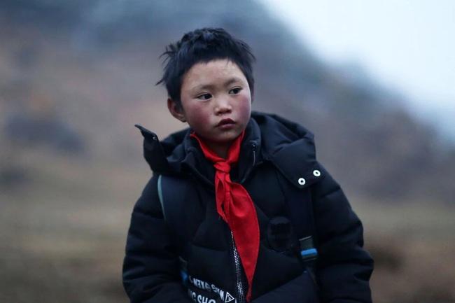 """""""Cậu bé băng giá"""" nổi tiếng bất đắc dĩ với mái tóc phủ đầy tuyết và cuộc sống kỳ tích sau 2 năm, người mẹ bỏ nhà đi đã quay về - Ảnh 3."""