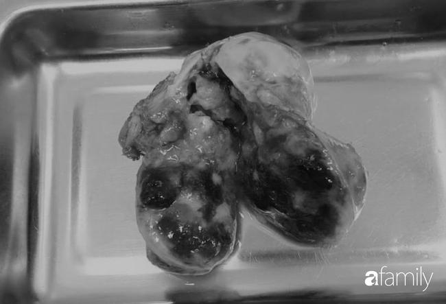 Liên tục nặng ngực và khó thở, người phụ nữ suýt chết vì thứ rất nguy hiểm trong buồng tim - Ảnh 2.