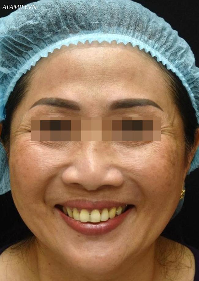 Từ vụ ngộ độc botulinum trong Pate Minh Chay: Bác sĩ tiết lộ mỹ phẩm cũng sử dụng độc tố này - Ảnh 3.