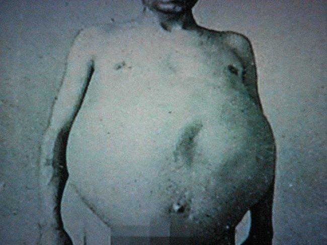 """Chuyện kỳ lạ về người đàn ông bị táo bón bẩm sinh, chết trong nhà vệ sinh khi cố đi đại tiện, cận cảnh ruột già được trưng bày trong bảo tàng Mỹ gây """"sởn da gà"""" - Ảnh 1."""