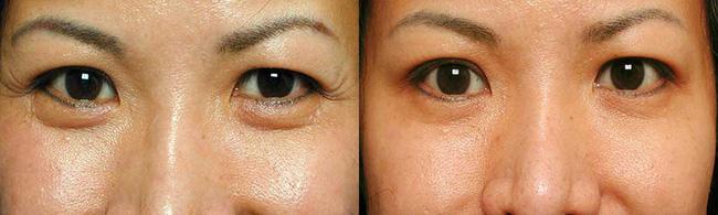 Xóa nhăn đuôi mắt bằng botox: Giải pháp giúp chị em trẻ ra 10 tuổi có thời gian thực hiện dài bằng một giấc ngủ trưa ngắn - Ảnh 3.