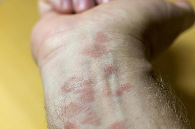 Chuyên gia da liễu tiết lộ 3 bệnh về da thường gặp vào mùa đông, muốn phòng tránh phải làm đủ 10 điều quan trọng sau! - Ảnh 3.