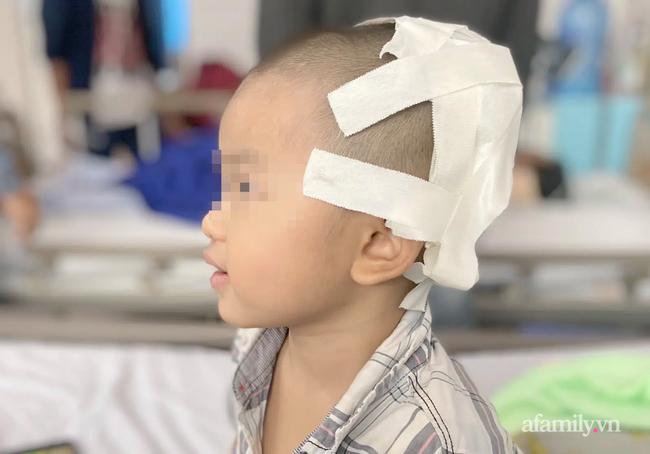 Tai nạn kinh hoàng: Anh lấy xe đạp chở em chơi quanh xóm rồi bị té, bé trai 2 tuổi lõm sọ não - Ảnh 1.