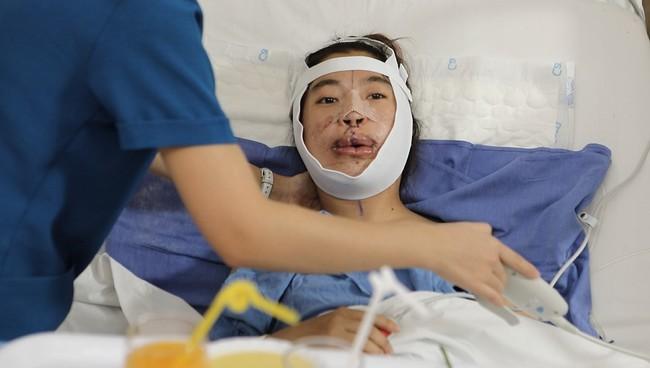 """Màn lột xác gây chấn động cư dân mạng của cô gái """"không sống mũi"""" sau 2 cuộc đại phẫu đỉnh cao, mẹ đẻ ngỡ ngàng không nhận ra nổi - Ảnh 4."""