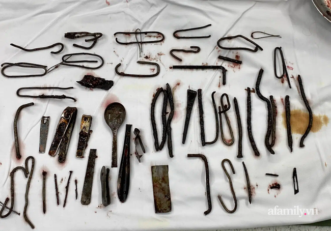 """Kinh hãi nam thanh niên 27 tuổi ở Bình Dương nuốt 1kg lưỡi dao, đinh, móc đồ vì mắc hội chứng """"ăn bậy"""" - Ảnh 3."""