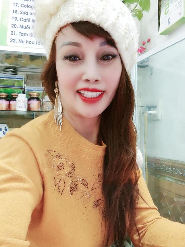 Sau nửa năm dao kéo, cô dâu 62 tuổi ở Cao Bằng vẫn sở hữu gương mặt cứng đơ, méo lệch - Ảnh 5.
