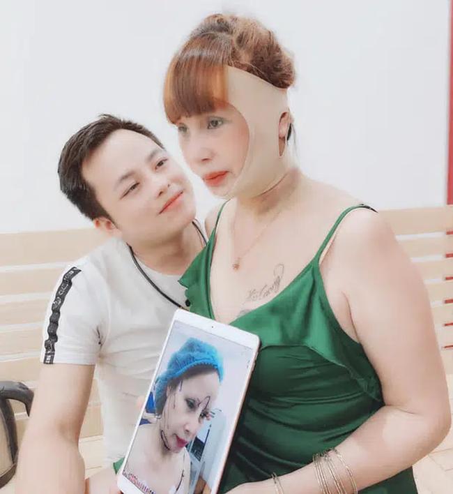 Sau nửa năm dao kéo, cô dâu 62 tuổi ở Cao Bằng vẫn sở hữu gương mặt cứng đơ, méo lệch - Ảnh 4.