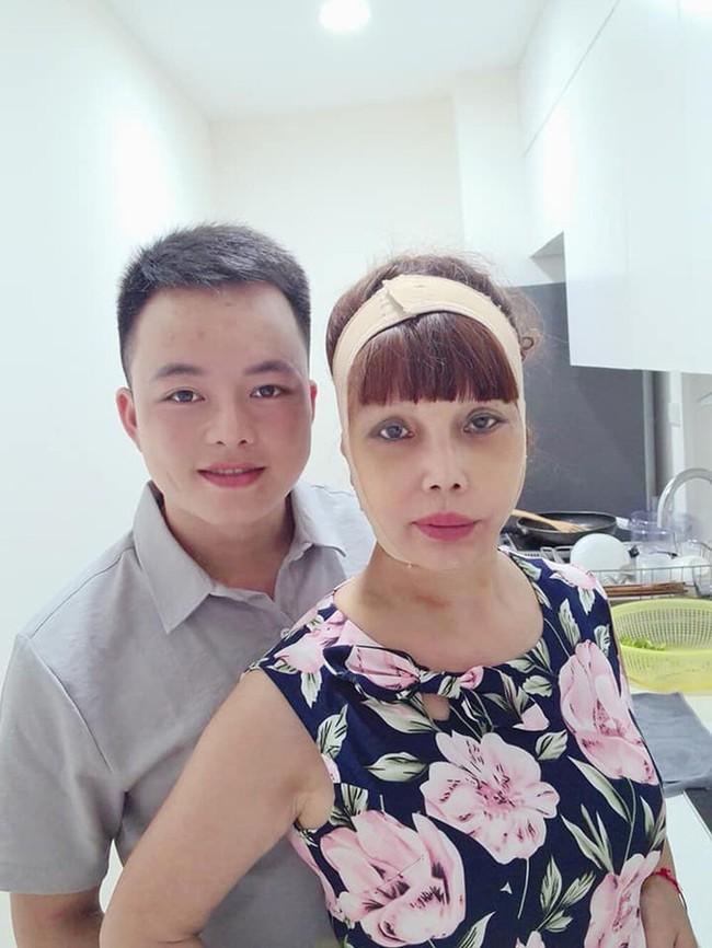 Sau nửa năm dao kéo, cô dâu 62 tuổi ở Cao Bằng vẫn sở hữu gương mặt cứng đơ, méo lệch - Ảnh 3.