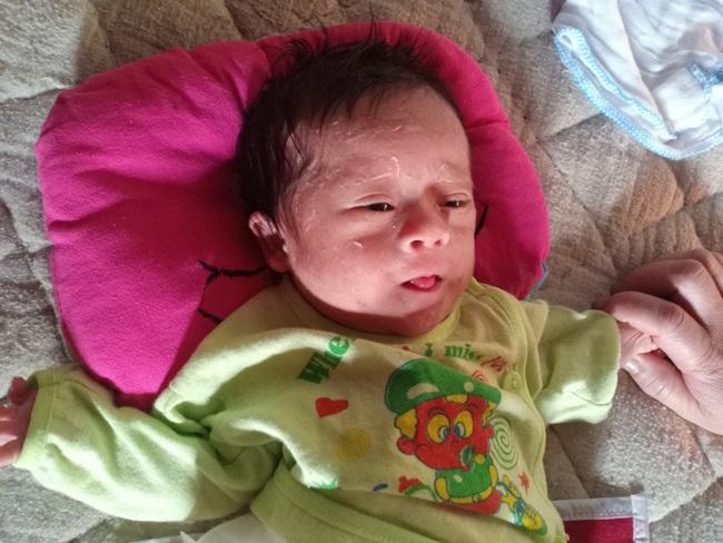 Ánh mắt cầu cứu của bé trai 1 tháng tuổi chào đời không có hậu môn - Ảnh 2.