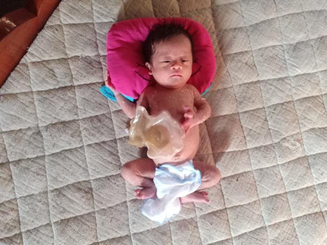 Ánh mắt cầu cứu của bé trai 1 tháng tuổi chào đời không có hậu môn - Ảnh 3.