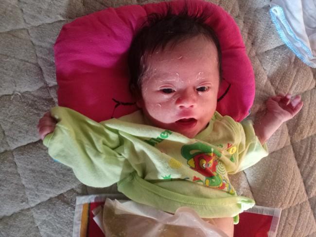 Ánh mắt cầu cứu của bé trai 1 tháng tuổi chào đời không có hậu môn - Ảnh 6.