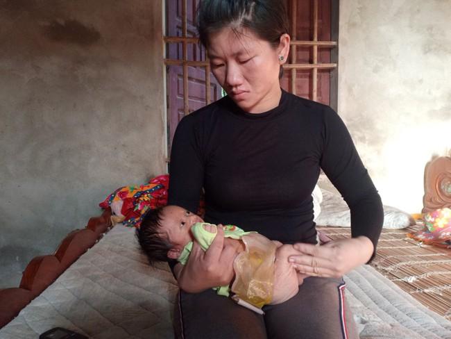 Ánh mắt cầu cứu của bé trai 1 tháng tuổi chào đời không có hậu môn - Ảnh 7.