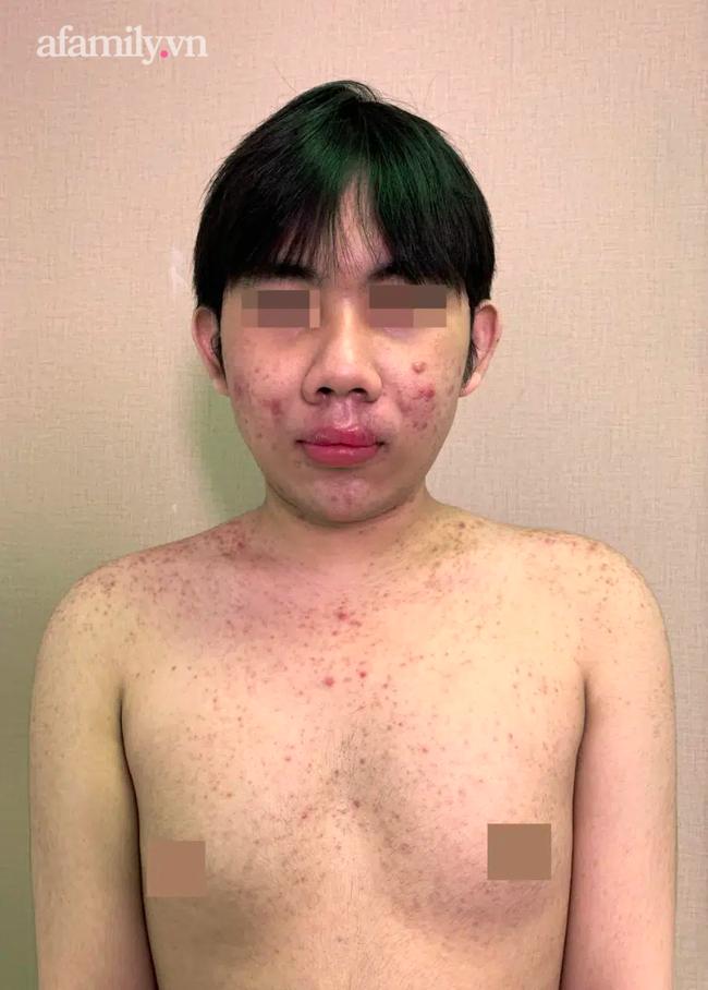 Cả xóm ở Trà Vinh rủ nhau mua silicon chợ về tự tiêm, 1 phụ nữ tử vong thương tâm sau khi bơm vào ngực - Ảnh 5.